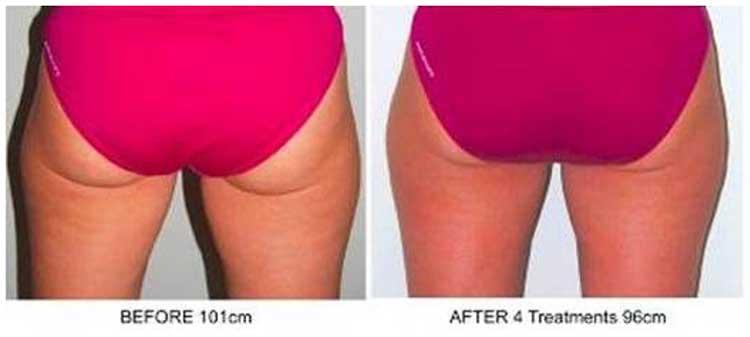 Body Spa Conquers Cellulite